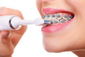 Чистка зубов и брекеты