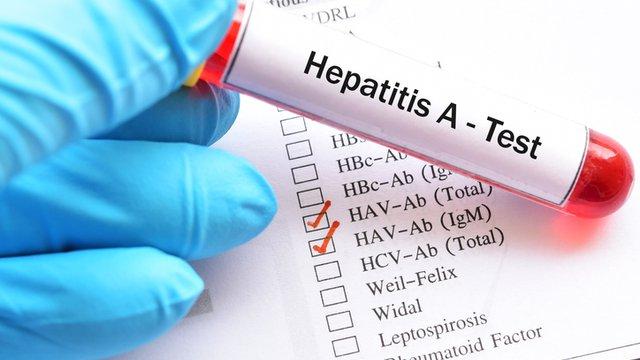 8 способов предотвратить распространение гепатита А у работников ресторана